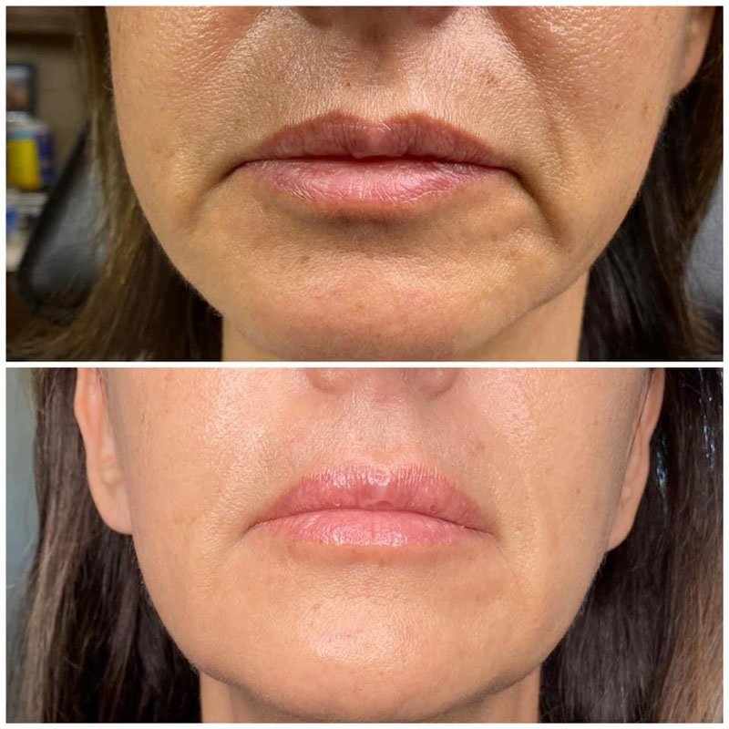 Lip blush before and after treatment