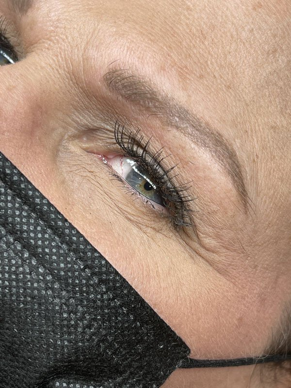 Microblading before treatment