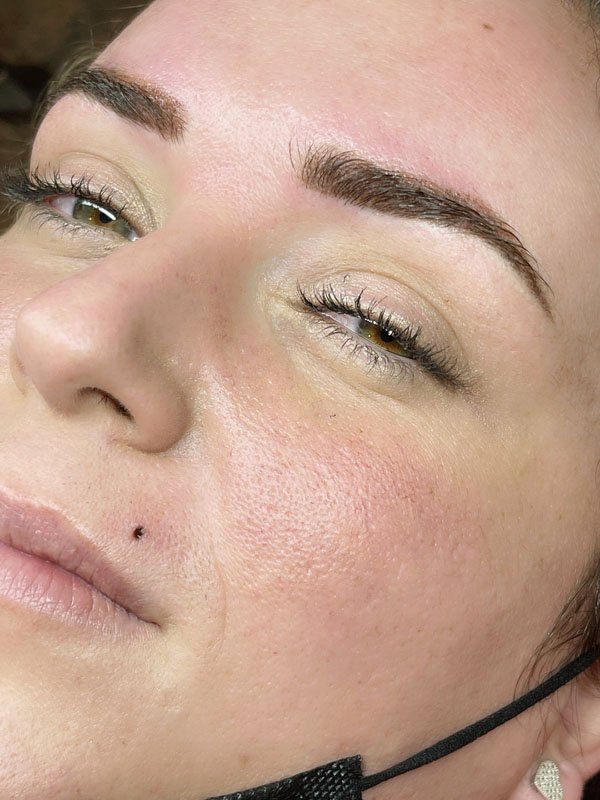 Microblading after treatment